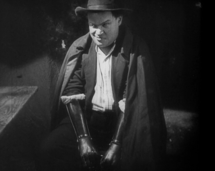 hands of orlac still 3